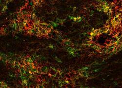Sclerosi multipla, scoperto nuovo meccanismo di demielinizzazione