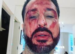 Fabrizio Corona arrestato, immagini choc su Instagram: insanguinato a terra