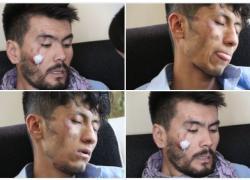 Afghanistan, Talebani picchiano e arrestano giornalisti a Kabul. Tra loro anche un italiano
