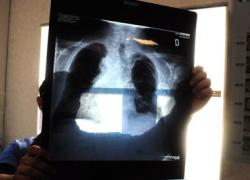 Tumore al polmone: sintomi, prevenzione, fattori di rischio, sopravvivenza