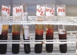 'Contro Covid un vaccino in meno di 1 anno, passerà alla storia'