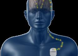 Medtronic, nuovo dispositivo per la gestione del Parkinson