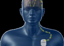 Parkinson, elettrocateteri direzionali per una terapia personalizzata