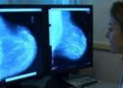 Un paziente oncologico su 6 colpito dal coronavirus presenta sintomi da Long-Covid