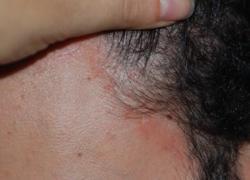 Farmaci: Costanzo (Humanitas), 'upadacitinib inibisce prurito in dermatite atopica'